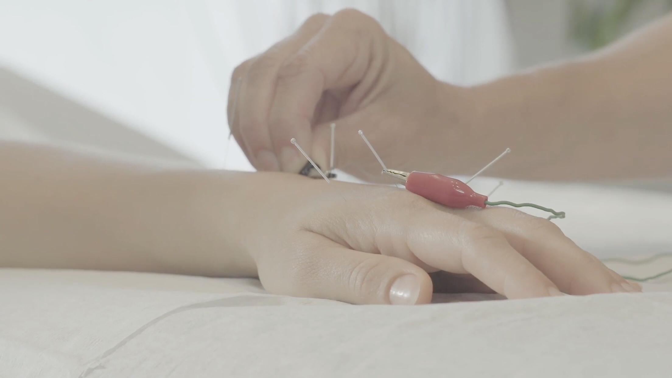 L'acupuncture dans le traitement de la douleur – Vidéo d'informations de l'Ordre des Acupuncteurs du Québec