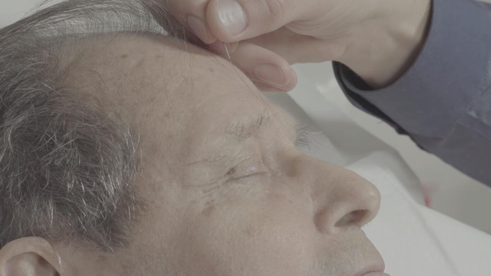 Les raisons de consultation fréquentes en acupuncture