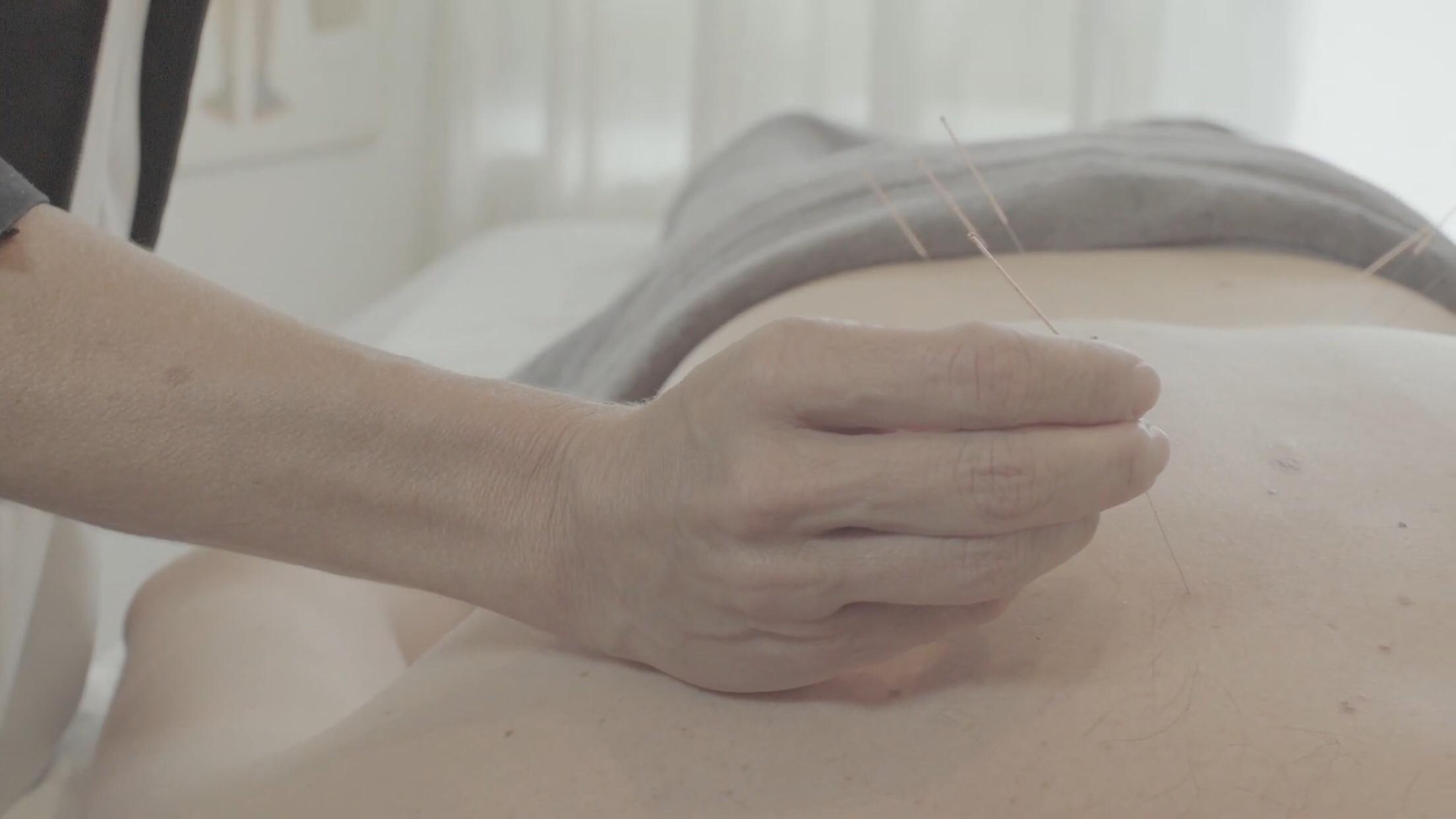 L'acupuncture et le cancer